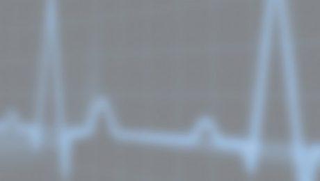 Image of lie detector ekg